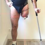 Above knee prosthetic socket fitting.