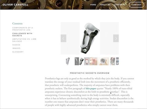 Oliver Carefull's amputee prosthetic legs website