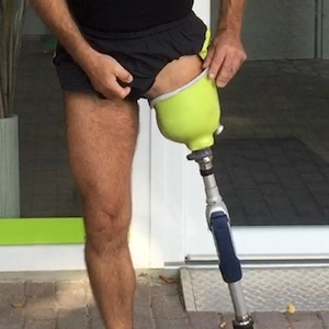 Amputee putting on above knee prosthetic leg.