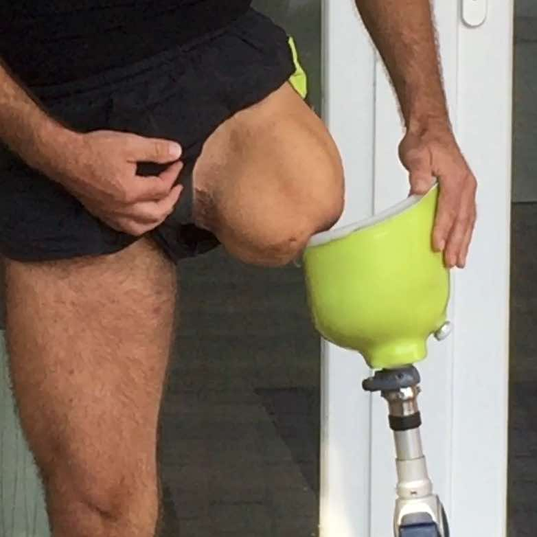 Above knee amputee putting on prosthetic leg.