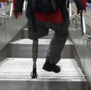 Compare prosthetic knee Ottobock CLeg Genium Össur Rheo VGK.